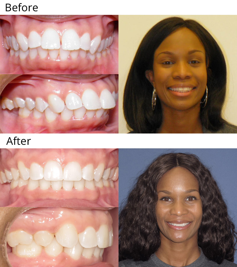 10 Simple Techniques For Braces Before And After