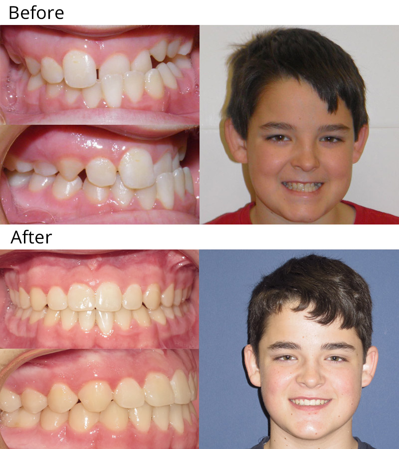 How long does it take to fix an overbite with braces and ...