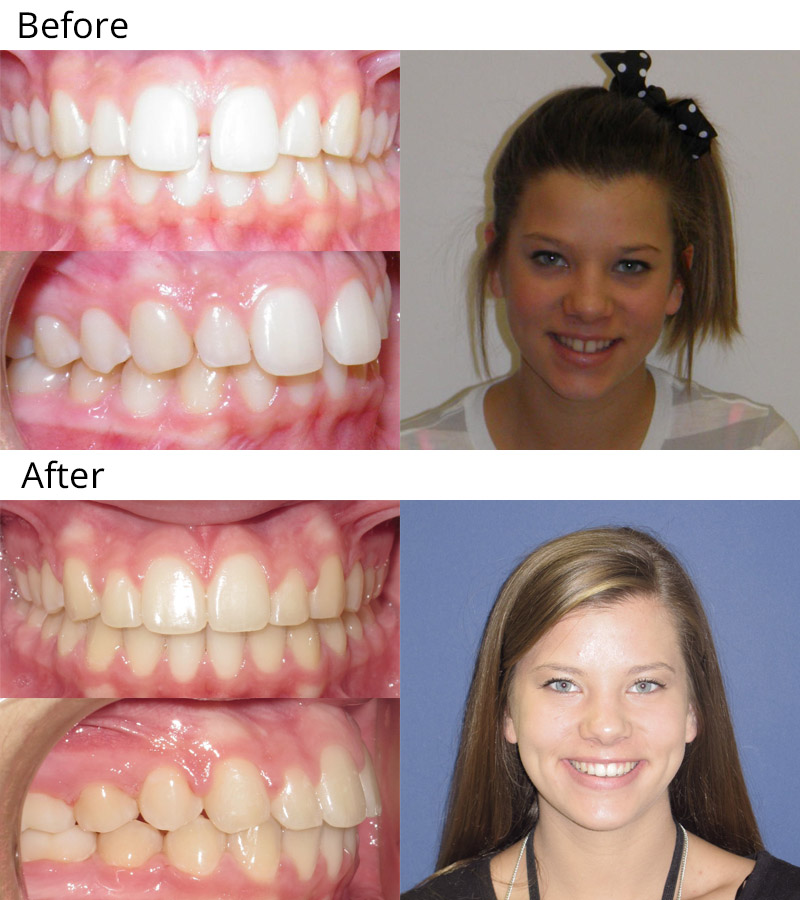 Before and After Gallery - West Temple Orthodontics ...
